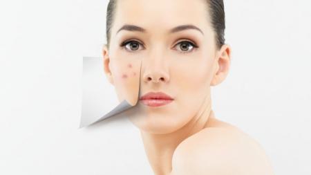 Consejos para prevenir y tratar el acné adulto.
