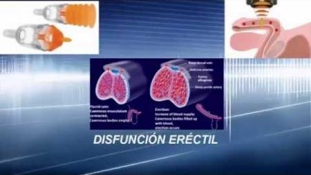 Surge tratamiento indoloro contra disfunción eréctil.