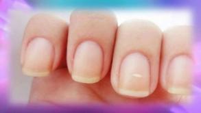¿Por qué aparecen puntos blancos en las uñas?