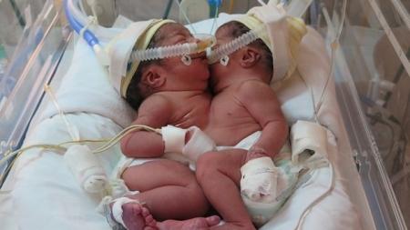 Nacieron siamesas unidas por el hígado en Perú.