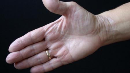 Palma de la mano podría revelar un ataque cardíaco.