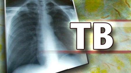 Maestro descubre nueva forma de detectar infección tuberculosa .