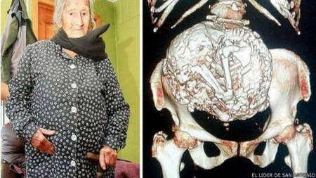 Encuentran un feto momificado en el vientre de una mujer chilena de 91 años.