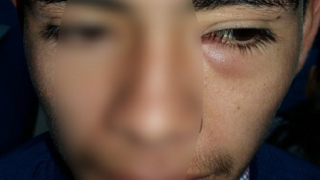 Médicos extraen larva de un mosquito del ojo de un peruano con albahaca como cebo.