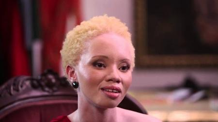 Thando Hopa, la lucha de la modelo albina suráfricana.