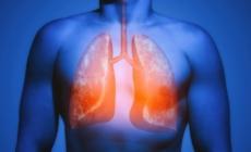 Alimentos para cuidar la salud de tus pulmones